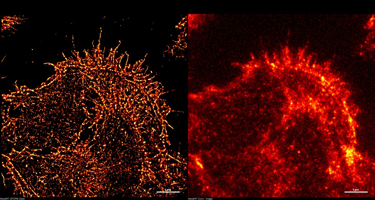 A side-by-side image of super-resolution imaging versus other types of resolution