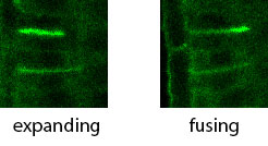photo of time-lapse images of a cell plate labeled with DRP1A-GFP