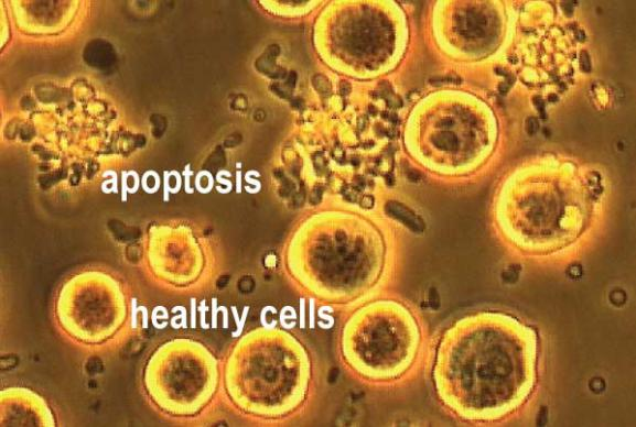 Image of apoptotic cells
