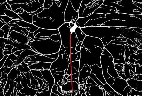 Photo of sensory neuron imaged in a live Drosophila larvae