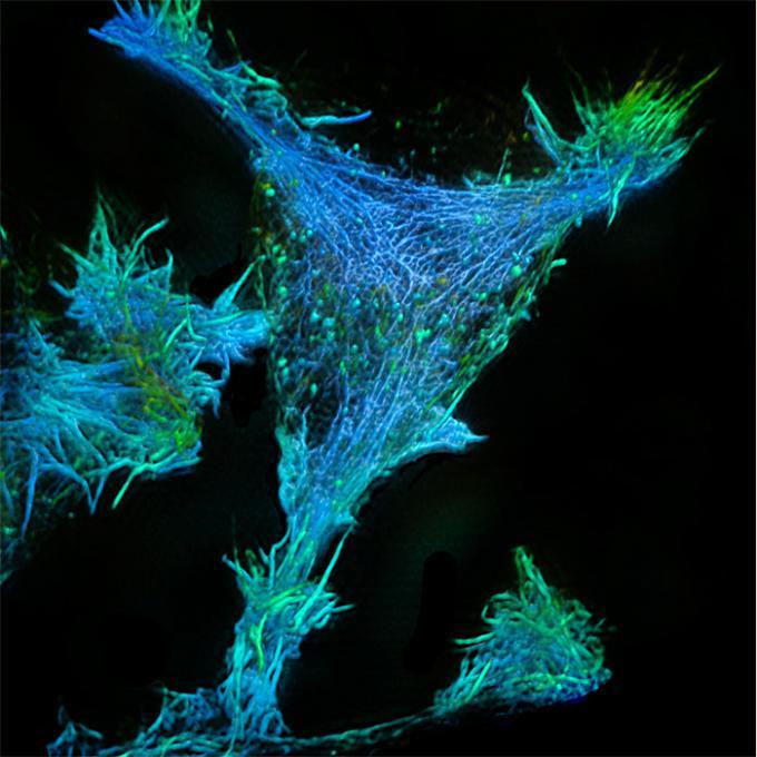 High resolution image of actin