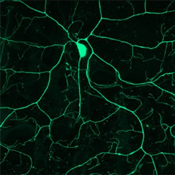 Photo of RNA-binding proteins in neurons