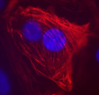 Image of human cardiomyocyte